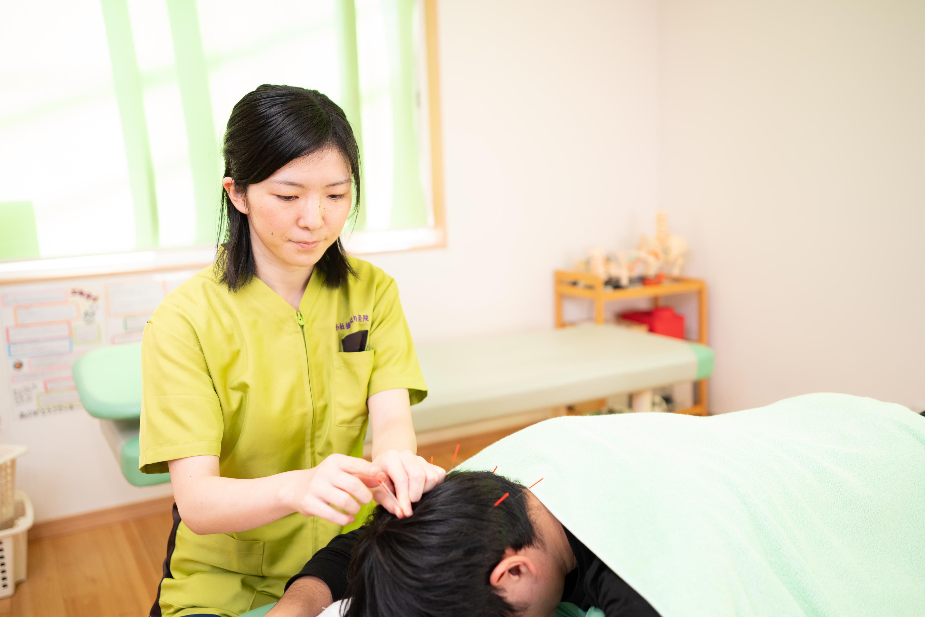 頭皮への鍼灸|仙台市